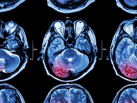 Identificada proteína capaz de prever gravidade do acidente vascular cerebral