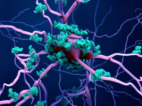 Agregação cerebral da proteína amiloide é eficazmente inibida em estudo