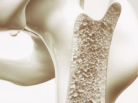 Laserterapia como opção para aprimorar regeneração óssea e tratar osteoporose
