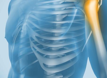 Enxerto ósseo sintético com isoflavonas de soja pode ajudar no câncer ósseo