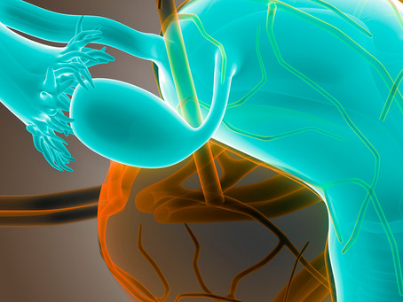 Estudo identifica alvo terapêutico para carcinomas de células claras do ovário