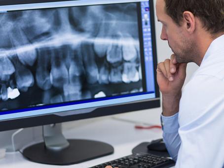 Estudo identifica link entre má saúde bucal e cânceres do aparelho digestivo