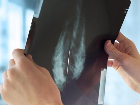 Câncer de mama triplo negativo melhor tratado com inibição seletiva de macrófagos