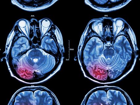 Direcionar a via Wnt pode ser estratégia em meduloblastomas agressivos