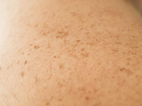 Identificado mecanismo de resistência do melanoma à imunoterapia