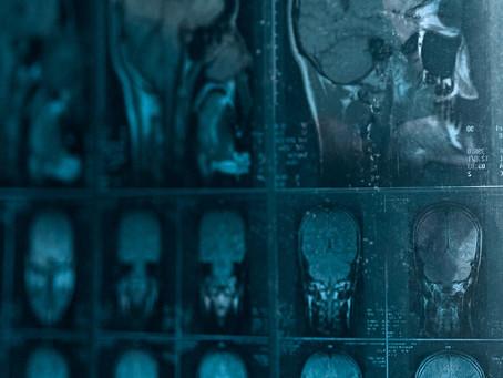 Estudo identifica neurônios e expressão gênica relacionadas às crises epiléticas