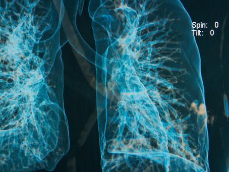 Estudo com células basais lança as bases para a regeneração das vias aéreas