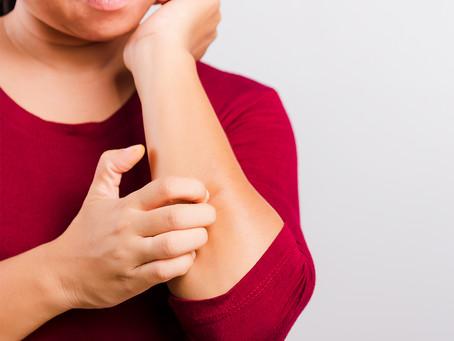 Prurido agudo do eczema é desencadeado por via neuroimune diferente