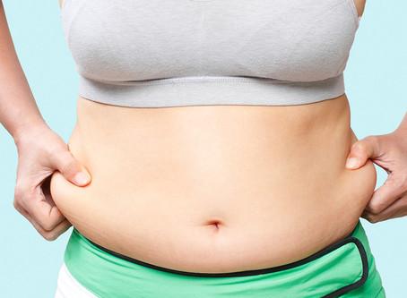 Emboloterapia bariátrica é opção pouco invasiva para perda de peso