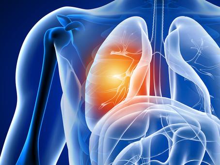 Pesquisa relaciona microbioma oral à câncer de pulmão em não fumantes