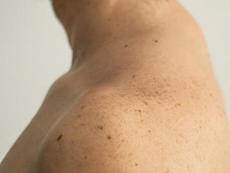 Método de triagem confere danos ao DNA para calcular risco de melanoma