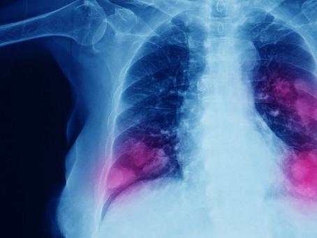 Nanovesículas de neutrófilos usados para entrega local de drogas no pulmão