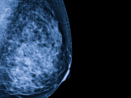 Identificado oncogene do câncer de mama ligado à metástase e quimiorresistência