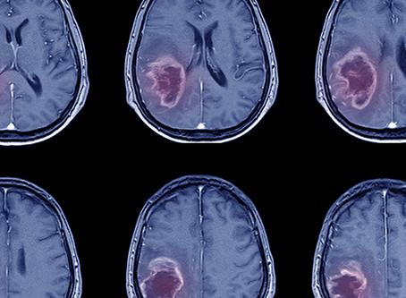 A relação entre saúde bucal e acidente vascular cerebral