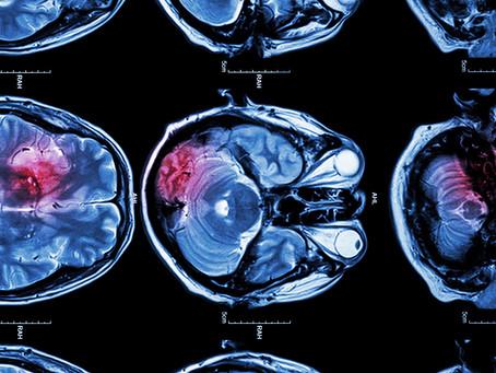 Estudo desenvolve terapia experimental promissora para AVC