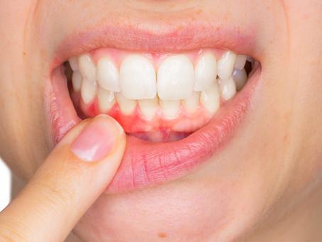 Estudo encontra link entre periodontite e condições inflamatórias sistêmicas
