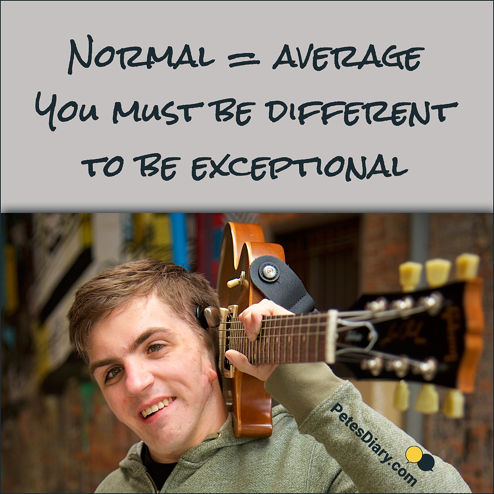 """Boy with goldenar syndrome holding a guitar with a motivational quote, """"you must be different to be exceptional"""""""