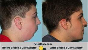 Jaw Reconstruction & Braces - Round 2