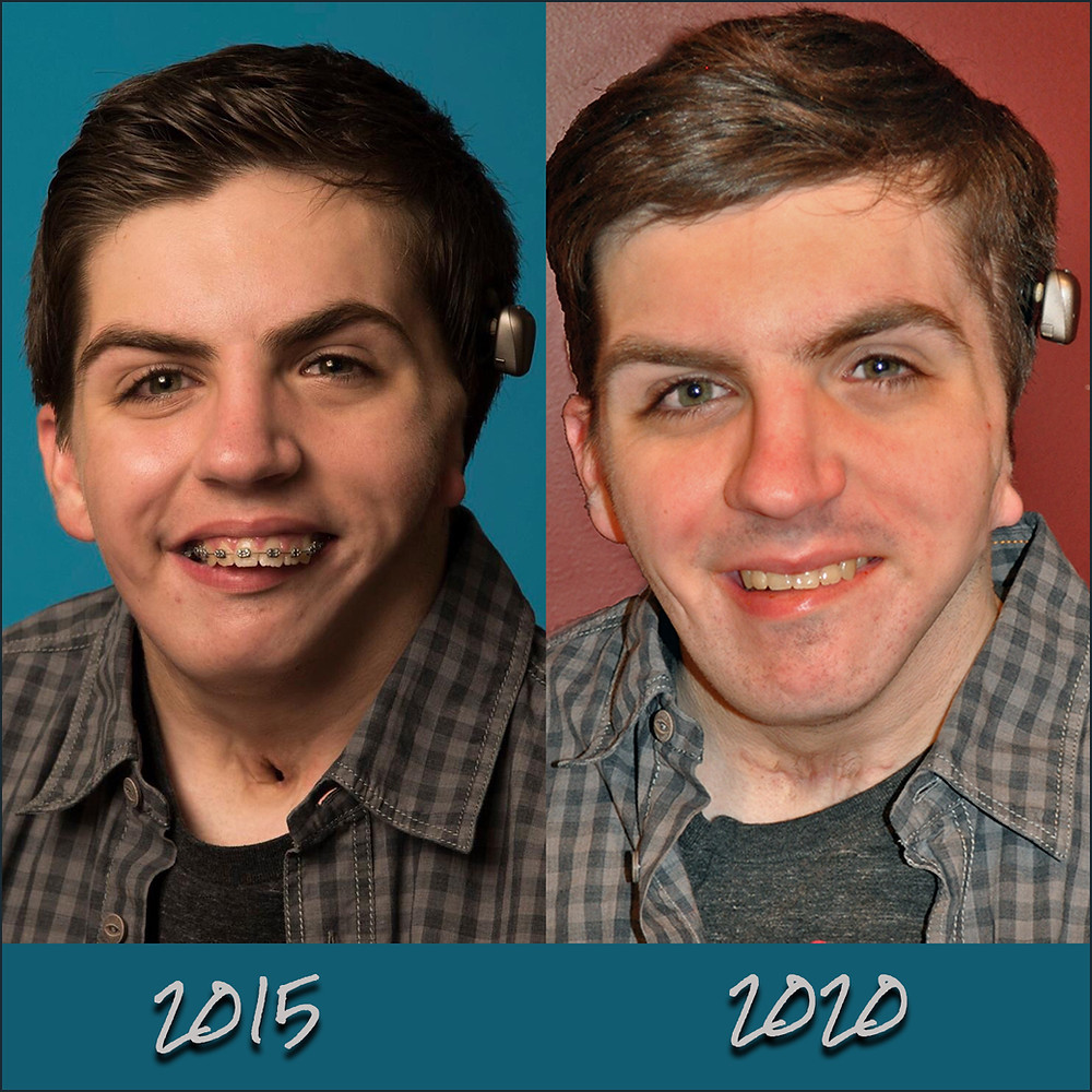 Goldenhar Syndrome, Jaw Reconstruction, Before and After