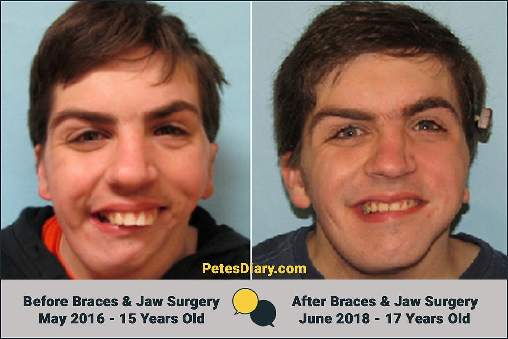 Before & After Jaw Reconstruction & Braces