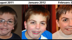 Before & After Braces - Round 1