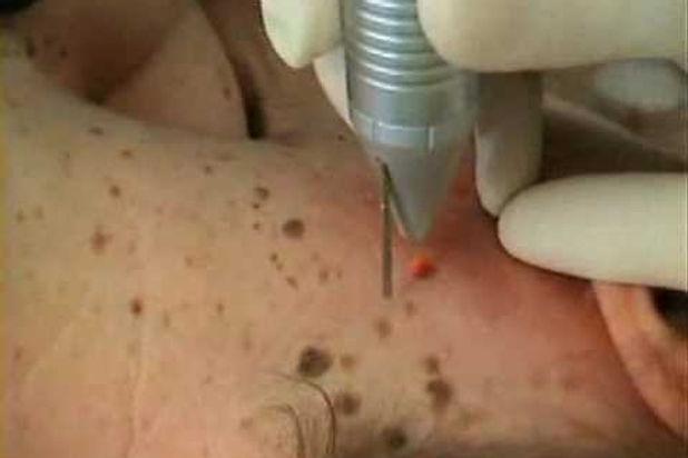 טיפול בעור מגורה לאחר הסרת קעקועים