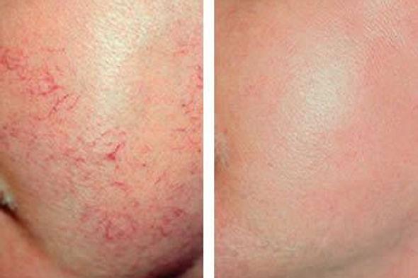 הסרת פגמים בעור