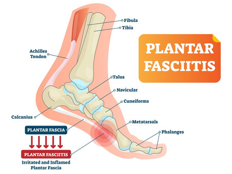 Is Plantar Fasciitis More Common in the Summer?