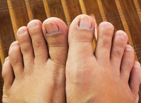 5 Disgusting Things That Can Happen To Your Feet...And what they're trying to tell you.