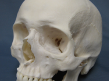 Facial Bone Changes With Age