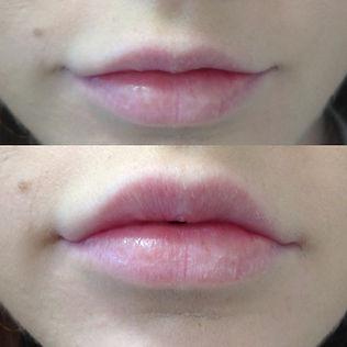 Lip Fill 1