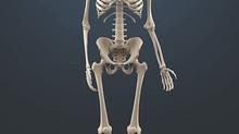 L'ostéogenèse imparfaite, surnommée maladie « des os de verre » ou encore maladie de Lobstein