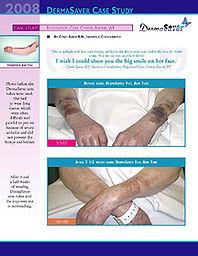 DermaSaver Case Study