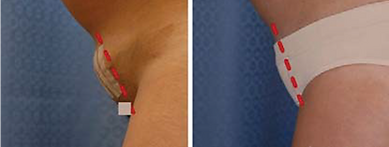 Reduce scarring after hysterectomy or c section