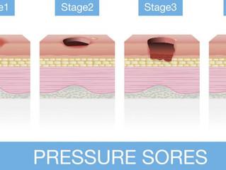 Pressure Injury on the heels