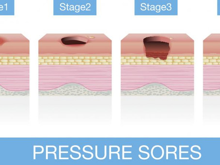 Caring for a Pressure Sore