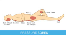 The Pressure Ulcer Problem