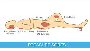 Diagra of common pressure sore and bed sore areas
