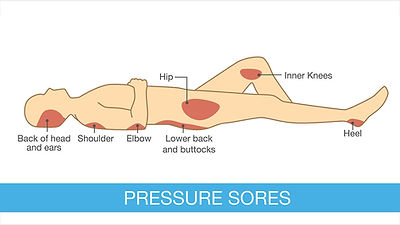 Image of here pressure sores usually occur