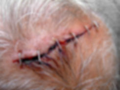 Injury on seniors head