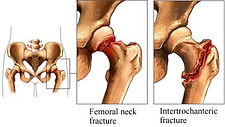 Hip Fracture picture.jpg