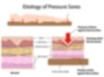 Etiology of pressure sores diagram