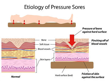Etiology of pressure sores diagram