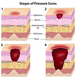 Stages of pressure sores diagram