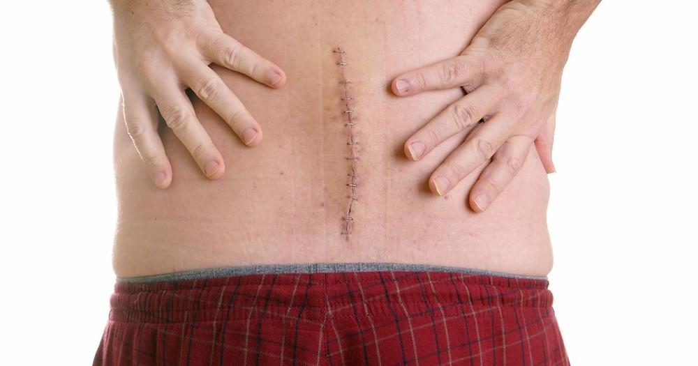 Lumbar back surgery