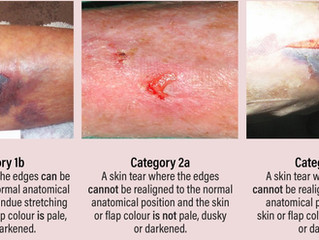 Skin tears can have serious and long term consequences for patients with frail skin