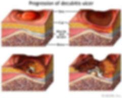 image of progression of decubitis ulcer