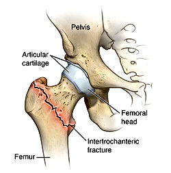 Diagram of a fractured hip or intertrochanteric fracture