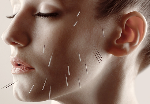 acupuncture facial rejuvenation.png