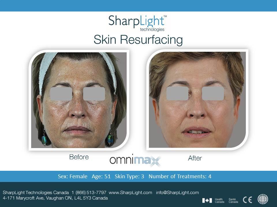 Sharplight Skin Rejuvenation